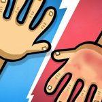 משחק ידיים אדומות